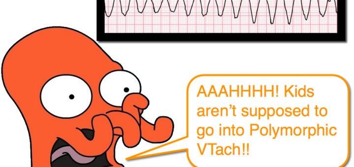 PolyMorphic VTach