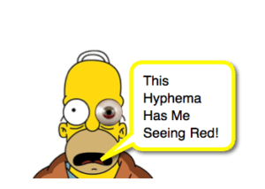 Traumatic Hyphema
