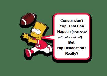 Pediatric Traumatic Hip Dislocation