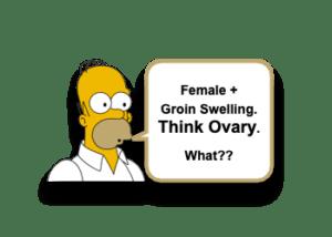 Ovarian Inguinal Hernia