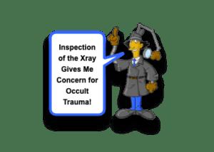Scapular Fracture