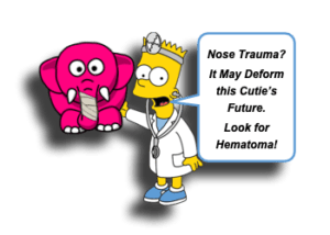 Nasal Septal Hematoma in Children